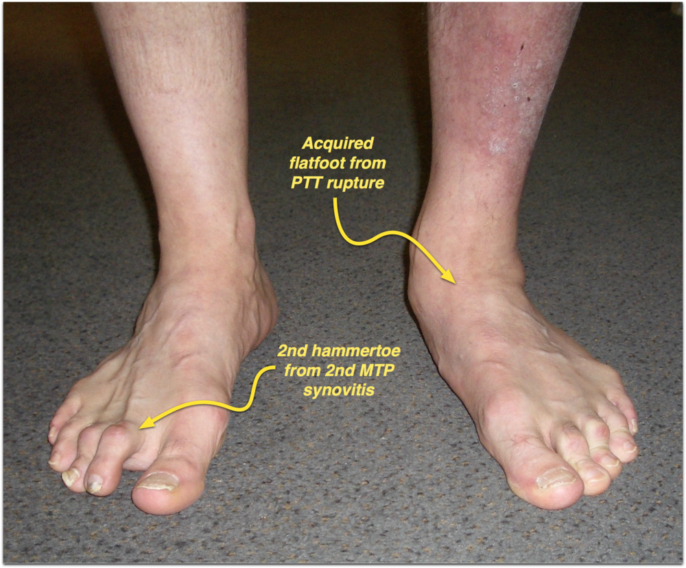 Front of foot