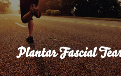 Plantar Fascial Tears: It's Just Science